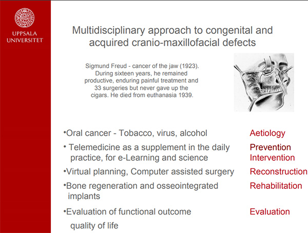 En powerpoint bild: Multidisciplinary approach to congenital and acquired cranio-maxillofacial defects
